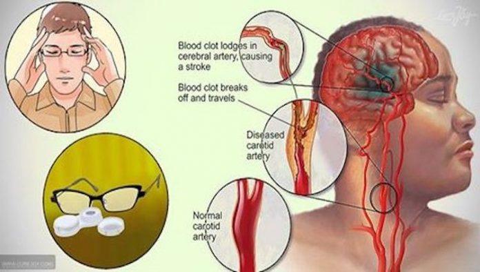 , 6 signos tempranos de un accidente cerebrovascular que nunca debes tomar a la ligera, Alimenta y Cura