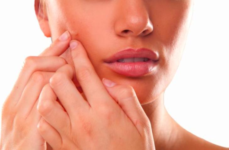 , Dime en qué parte de tu rostro tienes brotes de acné y te diré qué problema de salud padeces…, Alimenta y Cura, Alimenta y Cura