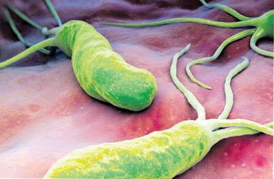 , Método natural para eliminar la bacteria Helicobacter Pylori del estómago., Alimenta y Cura