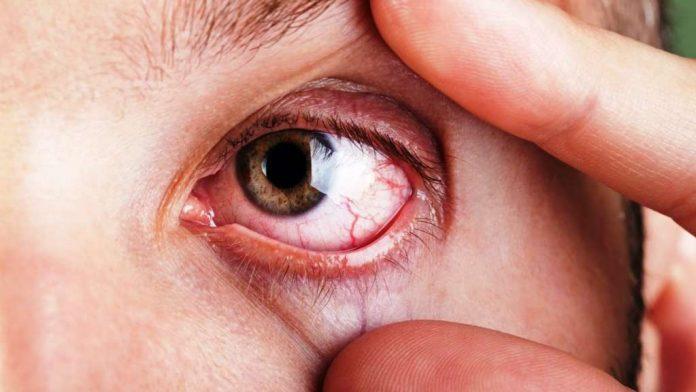 , Remedios naturales para combatir el síndrome del ojo seco…, Alimenta y Cura
