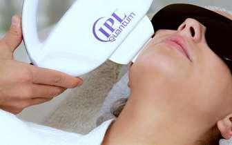 , Tratamientos dermatológicos para manchas en la cara, Alimenta y Cura, Alimenta y Cura