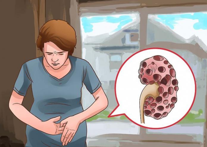 , 10 síntomas iniciales que indican que tus riñones están en problemas… ¡Cuidado!, Alimenta y Cura