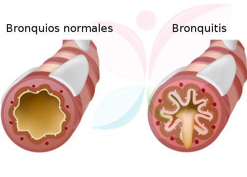 , 5 soluciones eficaces para la bronquitis, Alimenta y Cura, Alimenta y Cura