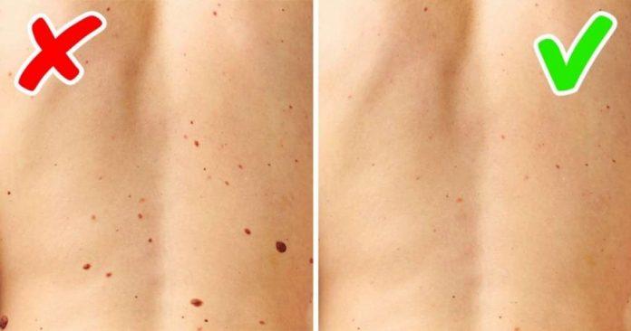 , Conoce las 5 enfermedades serias que señala nuestra piel…, Alimenta y Cura