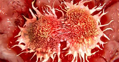, Los probióticos pueden ser muy útiles para prevenir y tratar el cáncer colorrectal, Alimenta y Cura, Alimenta y Cura