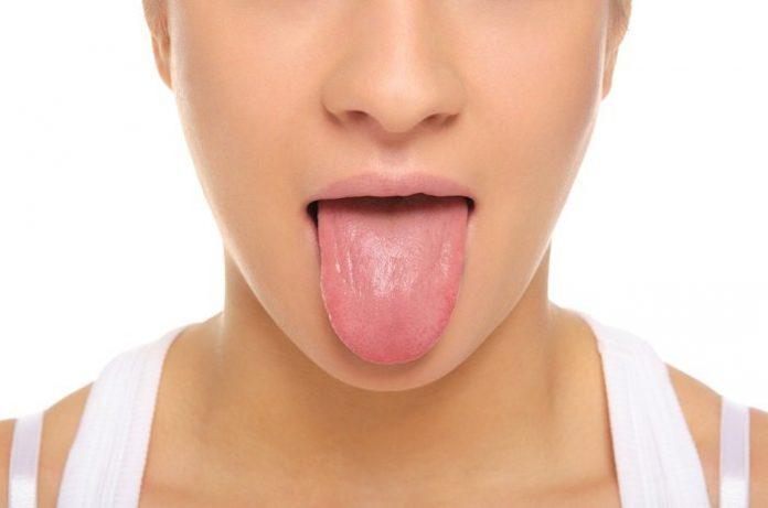 , ¿Qué es lo que esta diciendo tu lengua sobre el estado de tu salud?, Alimenta y Cura