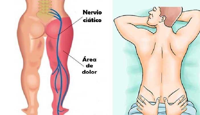 , Remedio para el dolor de #ciatica, Alimenta y Cura, Alimenta y Cura