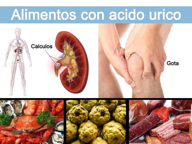 , Alimentos prohibidos para el ácido úrico y consejos para la hiperuricemia, Alimenta y Cura, Alimenta y Cura