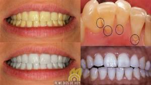 , Aprende como usar de esta forma el Vinagre de manzana para poder blanquear tus dientes: También elimina el sarro y las caries., Alimenta y Cura
