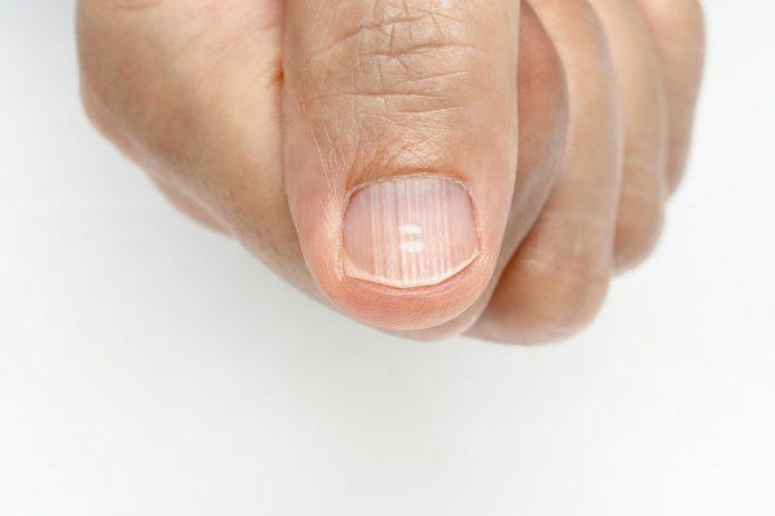 , 10 remedios naturales para las estrías en las uñas, Alimenta y Cura