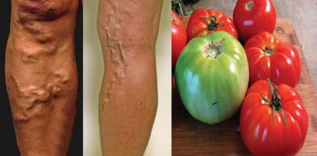 Cómo curar las várices con tomates verdes y rojos! RESULTADOS COMPROBADOS!