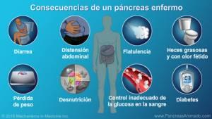 , Conoce aquí, los 6 principales síntomas que presenta una persona que tiene problemas en el Páncreas: ¡Esto puede salvar tu vida!., Alimenta y Cura