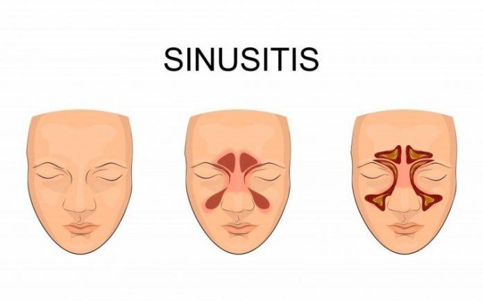 , Método natural para quitar la Sinusitis y toda la mucosidad de una vez por todas, Alimenta y Cura
