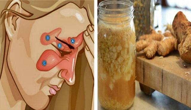 , Mezcla estos dos ingredientes, luego humedece paño y colócalo en el cuello en las noches y dile adiós a la sinustis, rinitis, gripe y más, Alimenta y Cura