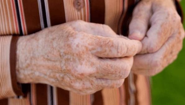 , Top 6 remedios caseros para manchas de la edad, Alimenta y Cura, Alimenta y Cura