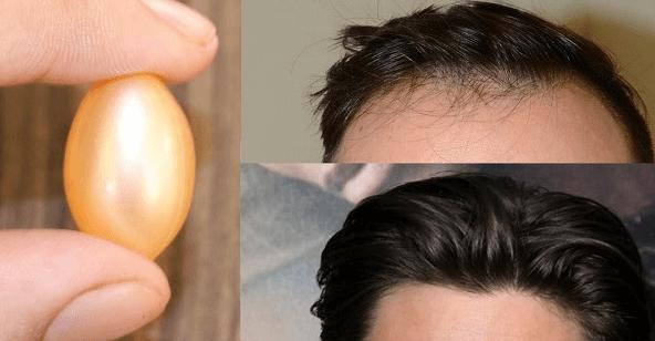 , Vitamina E crecimiento del cabello en suero. Su cabello crecerá como magia., Alimenta y Cura