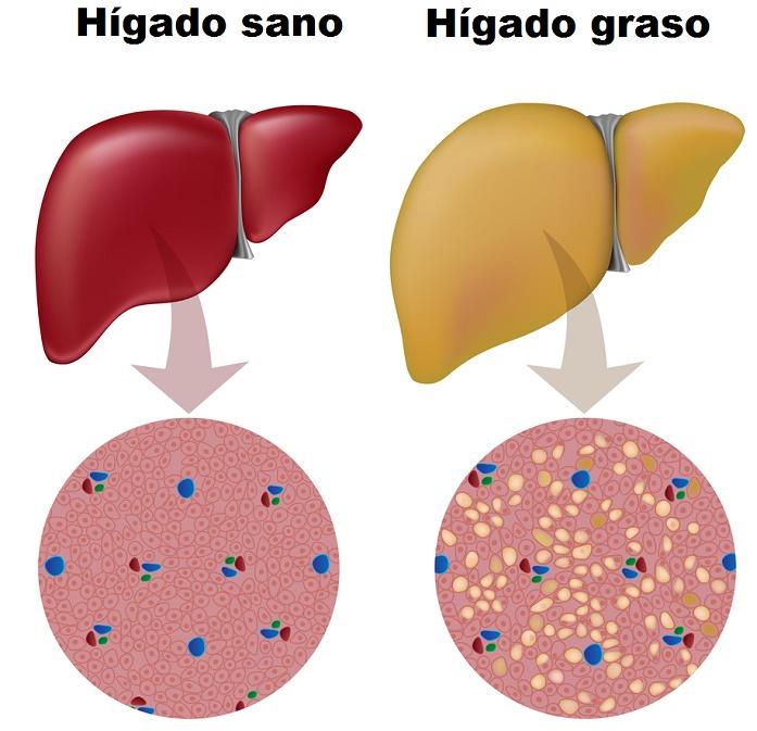 , Consume estos 7 alimentos naturales para curar el hígado graso, eliminar la sobrecarga de toxinas en el hígado, Alimenta y Cura, Alimenta y Cura