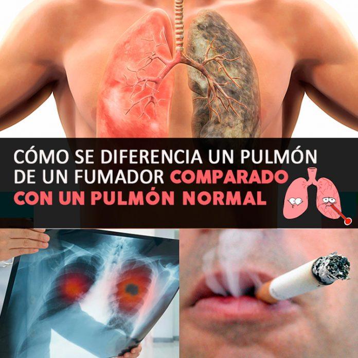, Cómo Se Diferencia Un Pulmón De Un Fumador Comparado Con Un Pulmón Normal, Alimenta y Cura