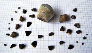 , Piedras En La Vesícula: Causas, Peligros, Síntomas, Diagnóstico Y Tratamiento, Alimenta y Cura, Alimenta y Cura