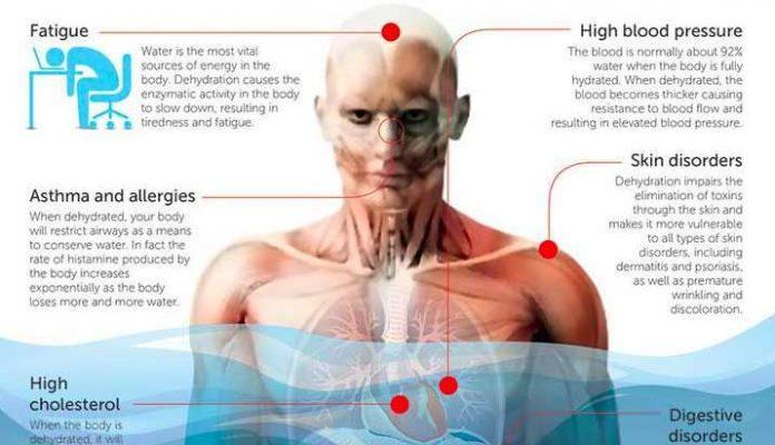, ¿Sabías Que La Deshidratación Nos Hace Enfermar?, Alimenta y Cura