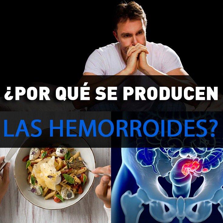 , Por Qué Se Producen Las Hemorroides: Causas Y Tratamiento, Alimenta y Cura