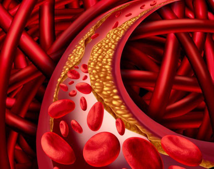 , Cómo preparar un licuado especial de remolacha para controlar el colesterol, Alimenta y Cura