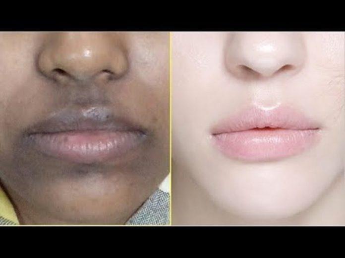 , En 3 días quitar puntos negros de forma permanente. Elimina manchas oscuras y cicatrices de acné., Alimenta y Cura, Alimenta y Cura