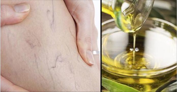 , Las varices son curables y el secreto está en el aceite de oliva, Alimenta y Cura