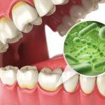 ¡Precaución! Estas son algunas señales de que tienes una infección en el diente y estos son algunos consejos para aliviarla