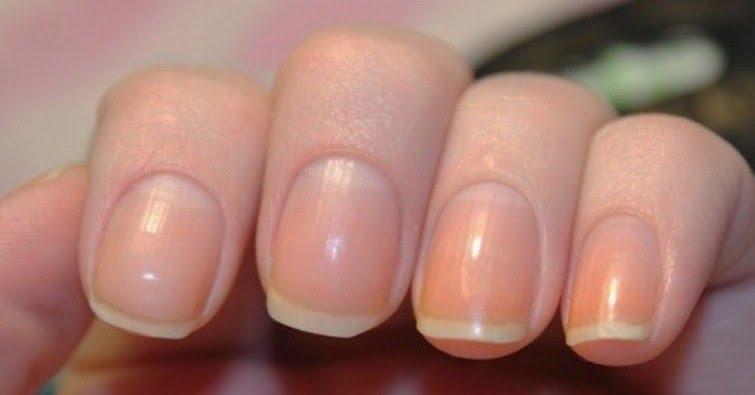 , ¿Sabes lo que representa la media luna en las uñas? te contamos lo que muestra sobre tu salud, Alimenta y Cura