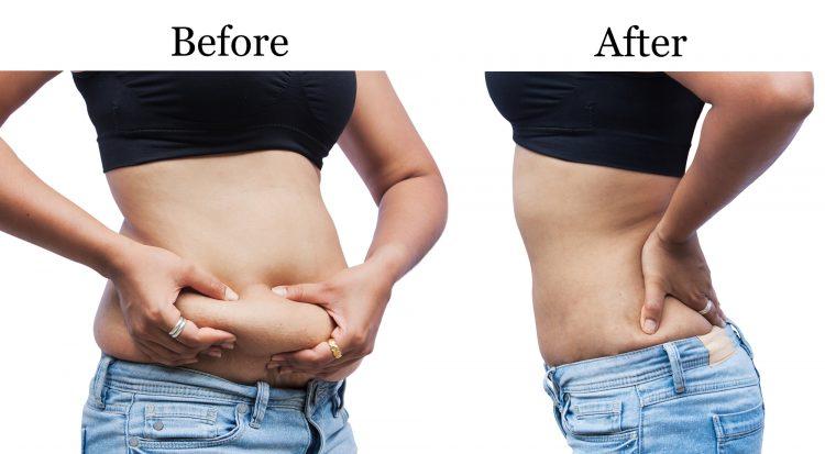, ¿Cómo terminar con la grasa del abdomen? Las mejores bebidas, Alimenta y Cura, Alimenta y Cura