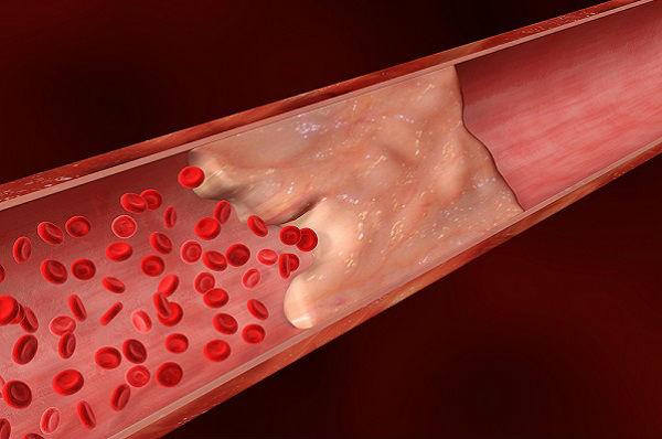 , Cómo revertir los depósitos de calcio en las arterias coronarias, Alimenta y Cura, Alimenta y Cura