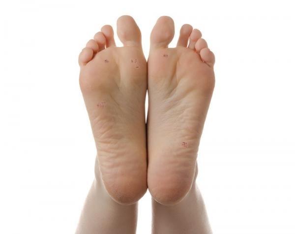 , Sumerge tus pies en agua oxigenada y algo inverosimil ocurrirá, Alimenta y Cura, Alimenta y Cura