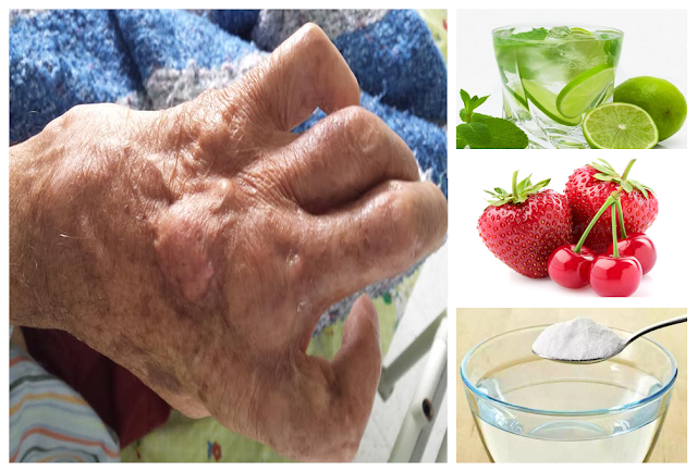 , Descubre Los 15 Remedios Caseros Para Combatir El Ácido Úrico Alto, Alimenta y Cura