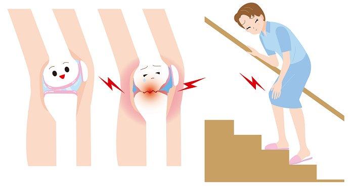 , Licuados con cúrcuma para tratar la inflamación por artritis, el tránsito intestinal y la fatiga, Alimenta y Cura, Alimenta y Cura