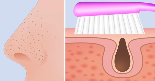 , Aprende a deshacerte de los puntos negros utilizando un cepillo de dientes, Alimenta y Cura, Alimenta y Cura