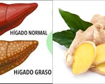 , Expulsa Todas las Toxinas y Grasa del Hígado con este licuado casero., Alimenta y Cura