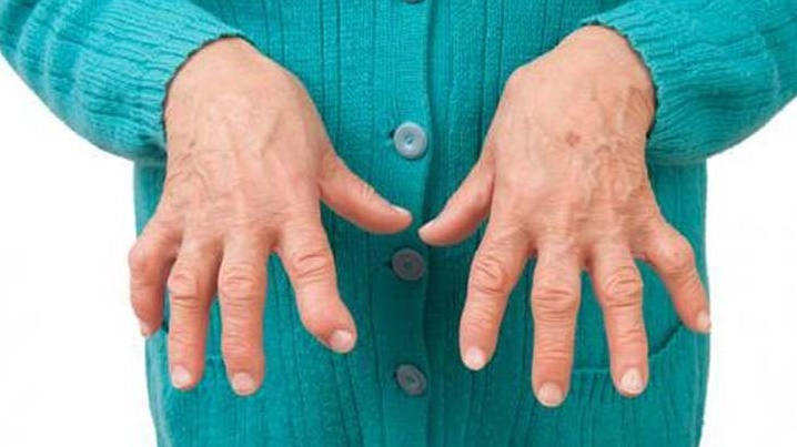 , Prepara el tomillo con limón para sanar la artritis en casa sin ir al médico., Alimenta y Cura, Alimenta y Cura