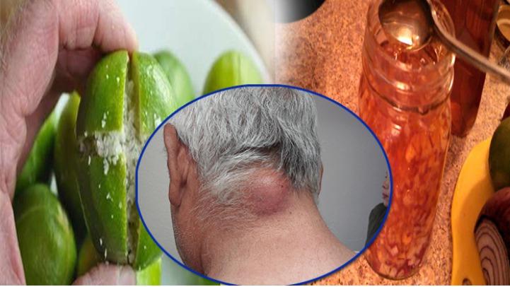, Así vas a eliminar los lipomas, bolas de grasa y quistes de la piel, solo con este remedio casero, Alimenta y Cura