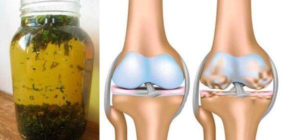 , Lo mejor para tratar la osteoartritis, el cartílago, las articulaciones, el desgaste y evitar dolor y rigidez en las articulaciones., Alimenta y Cura