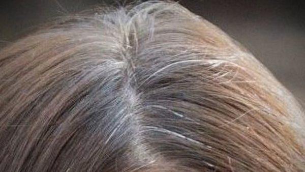 Si lo que quieres es desaparecer cada cabello blanco (Canas) de tu cabeza solo aplica esto y sé feliz