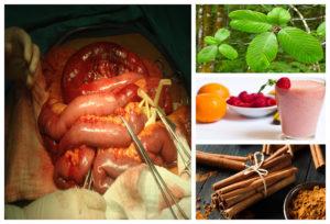 , Limpia Tu Intestino De Forma Natural Y Mejora Muchos Aspectos De Tu Vida, Alimenta y Cura